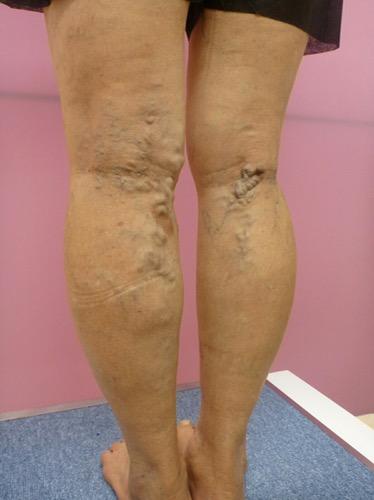 下肢静脈瘤のレーザー治療による...