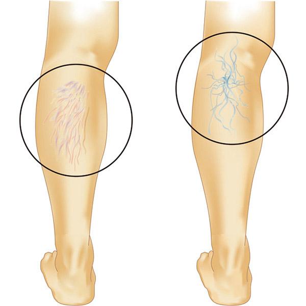 足の血管が見える、浮き出る【下肢静脈瘤】という病気につい ...